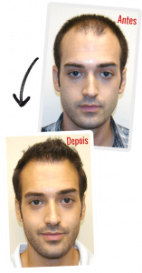 Depoimento HairLoss Blocker