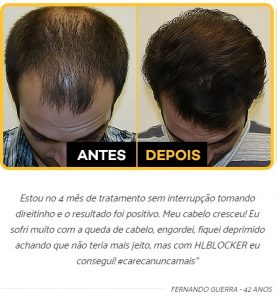 HairLoss Blocker é bom