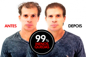 HairLoss Blocker Depoimentos